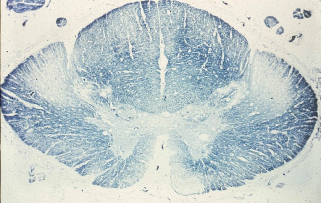 motor neuron disease amyotrophic lateral sclerosis spinal cord cross section