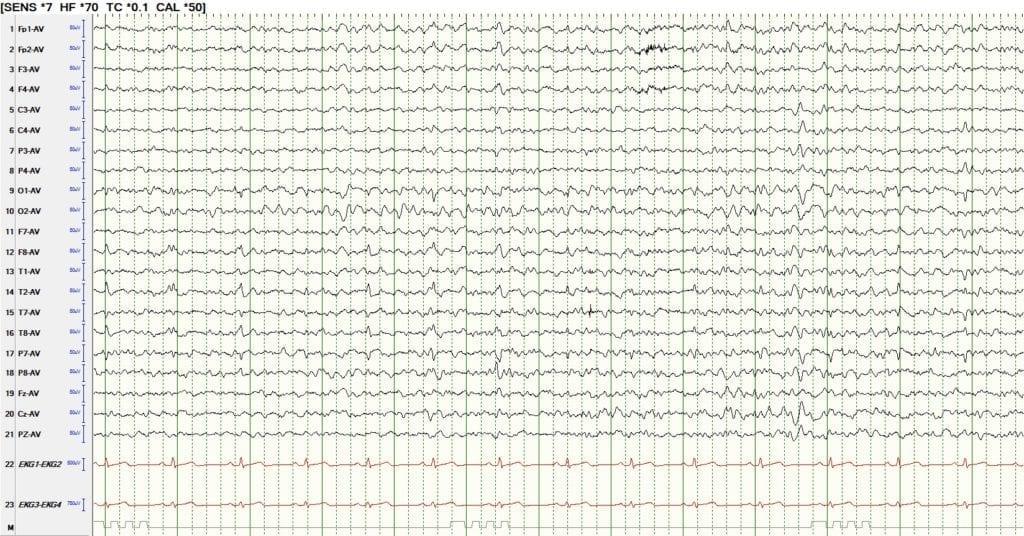 EEG review theta of drowsiness