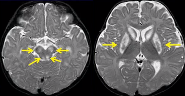 Leigh syndrome, hyperintensities of the cerebral peduncles and basal ganglia on T2 sequences