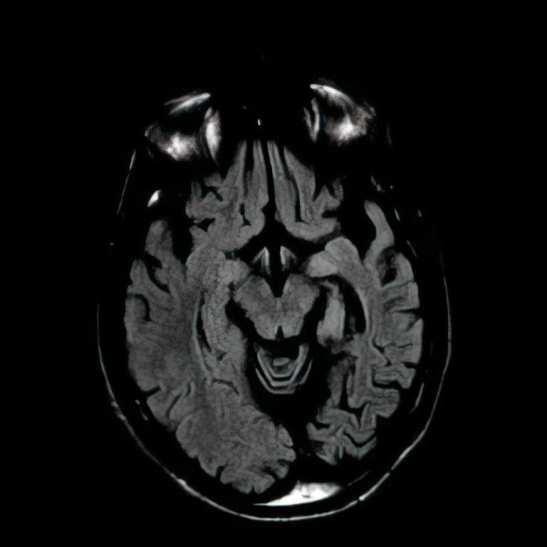 Rasmussen's encephalitis Axial T2 MRI showing asymmetric atrophy