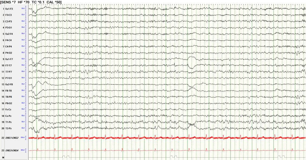 EEG review Beta range activity in the frontal head