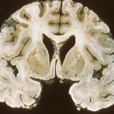 Bilateral ischemia on gross coronal section of brain