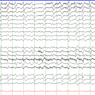 EEG with GPDs with Triphasic Morphology on Average montage, Secondary to hepatic encephalopathy