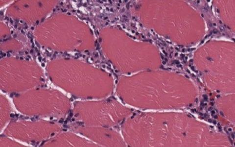 endomysium_inflammatory_cells_polymyositis