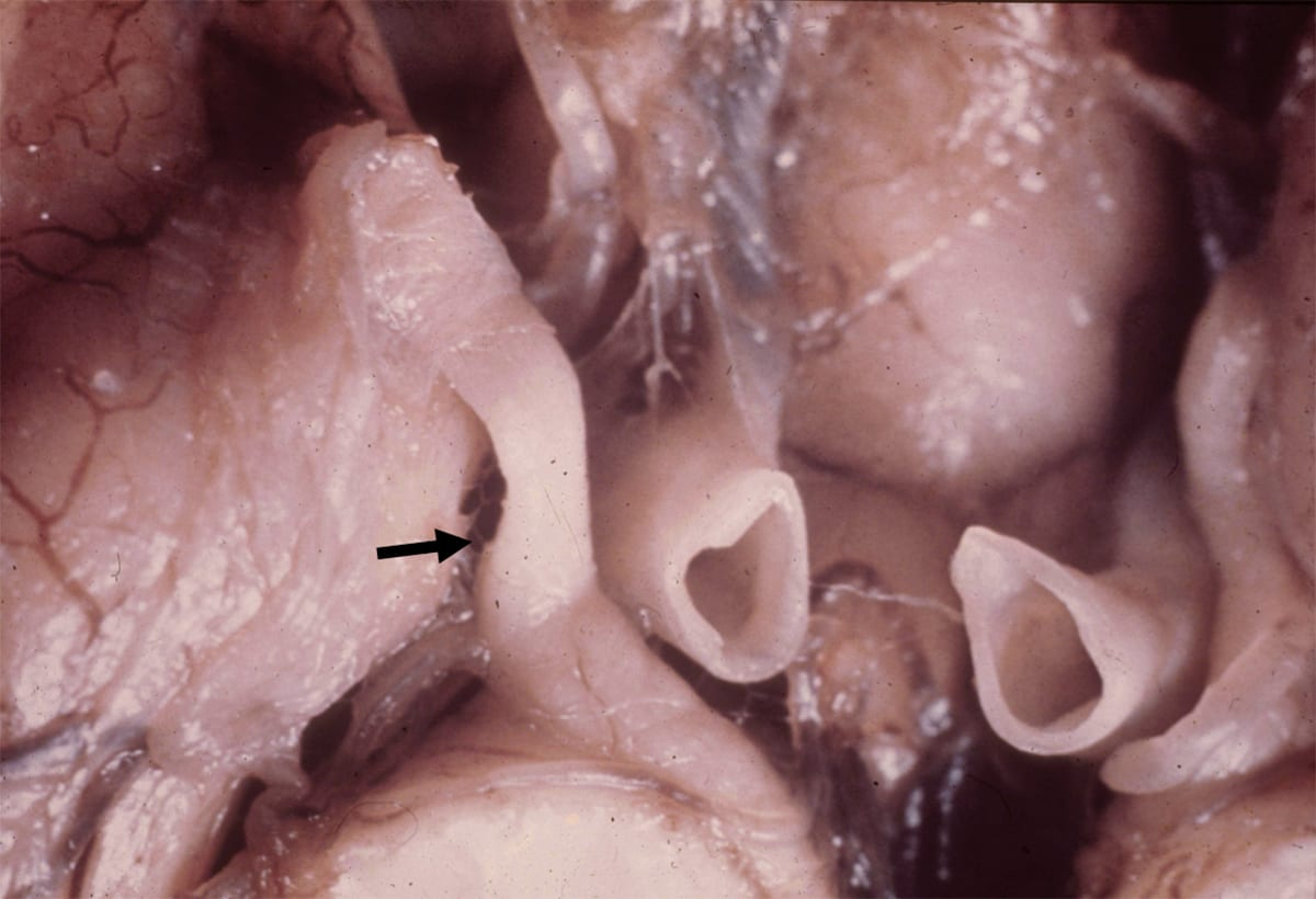 Oculomotor Nerve Compression from Uncal Herniation