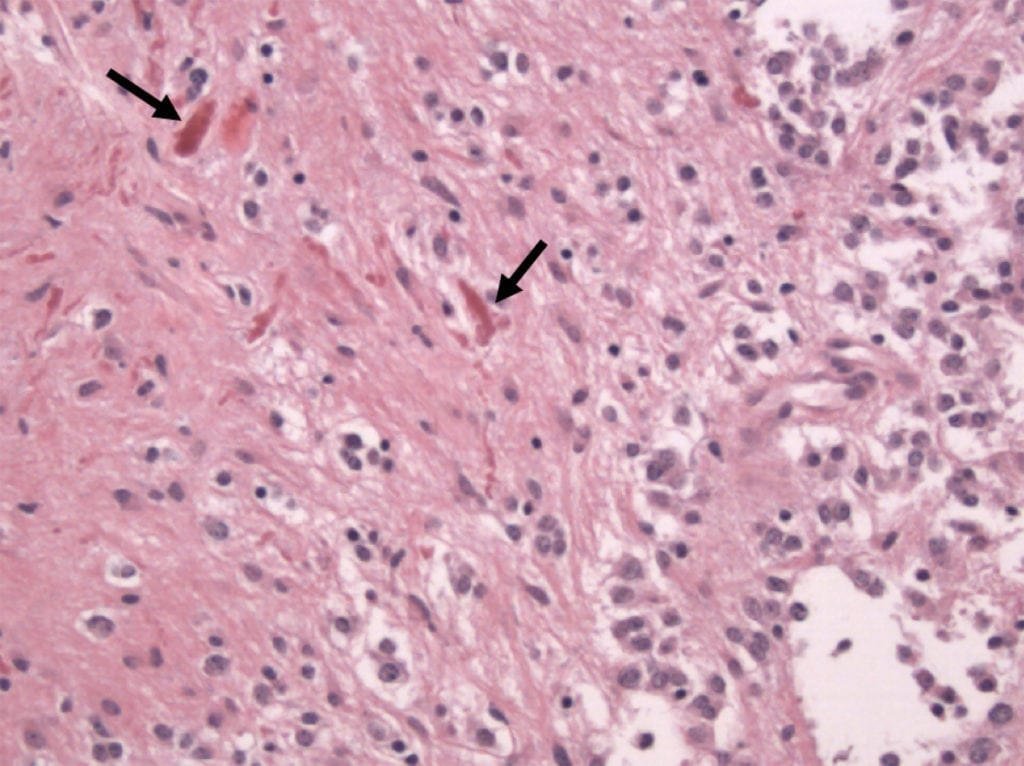 Rosenthal Fibers of Pilocytic Astrocytoma