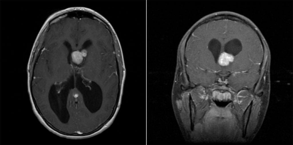 Subependymal Giant Cell Astrocytoma