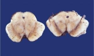 Midbrain substantia nigra pathology specimen of patient with Parkinson's Disease