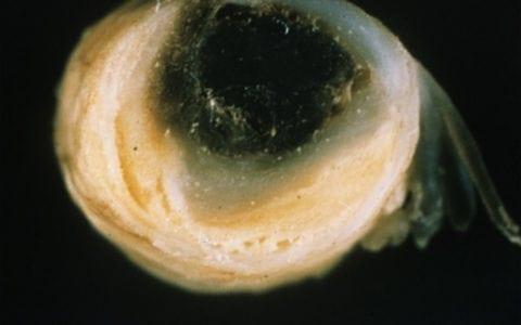 thrombus_in_atherosclerotic_basilar
