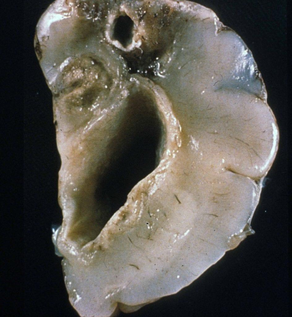 Neuroinfectious Disease congenital toxoplasmosis cortical necrosis